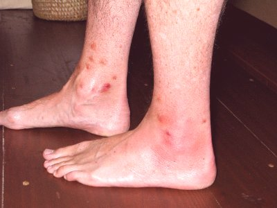 insect bite pictures treatment symptoms swelling