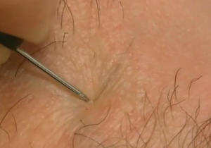 Ingrown Hair Pictures Removal Infection Treatment